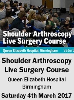 Arthrex Shoulder